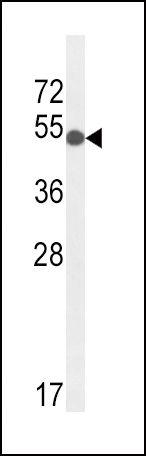 GPI Antibody (PA5-26787) in Western Blot