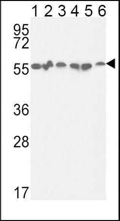 GPI Antibody (PA5-26787)