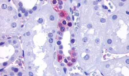 GPR110 Antibody (PA5-33608)