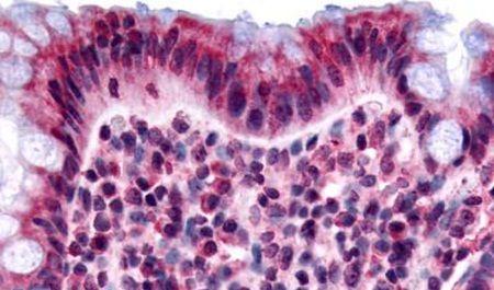 GPR120 Antibody (PA5-34035) in Immunohistochemistry (Paraffin)