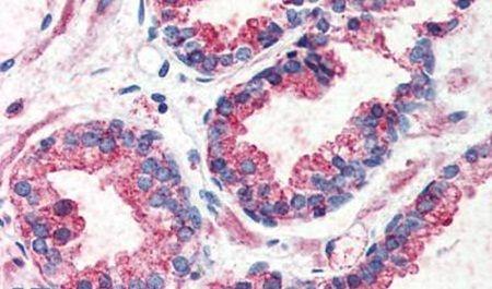 GPR126 Antibody (PA5-32795) in Immunohistochemistry (Paraffin)