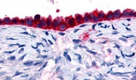 GPR133 Antibody (PA5-33624) in Immunohistochemistry (Paraffin)