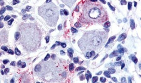 GPR149 Antibody (PA5-32801) in Immunohistochemistry (Paraffin)