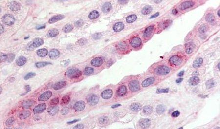 GPR15 Antibody (PA5-32802) in Immunohistochemistry (Paraffin)