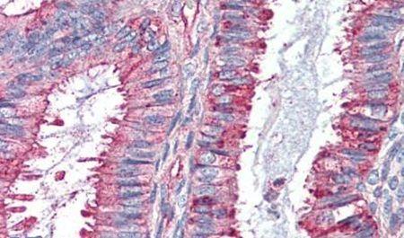 GPR27 Antibody (PA5-32820) in Immunohistochemistry (Paraffin)