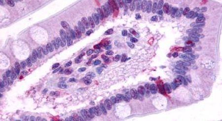 GPR39 Antibody (PA5-33709) in Immunohistochemistry (Paraffin)