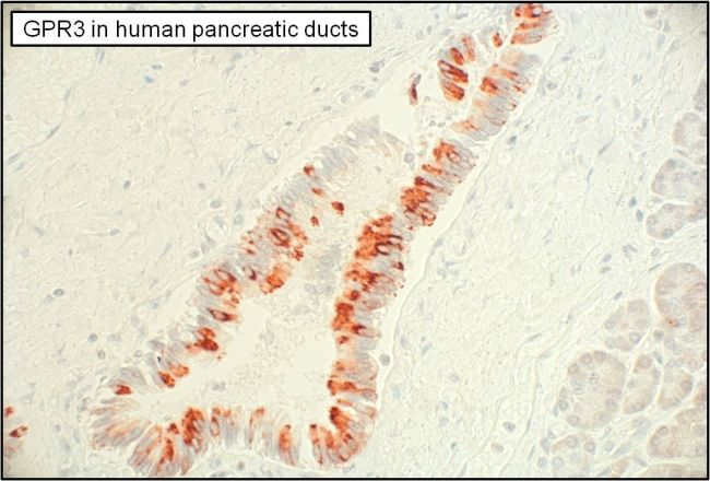 GPR3 Antibody (PA3-003) in Immunohistochemistry (Paraffin)