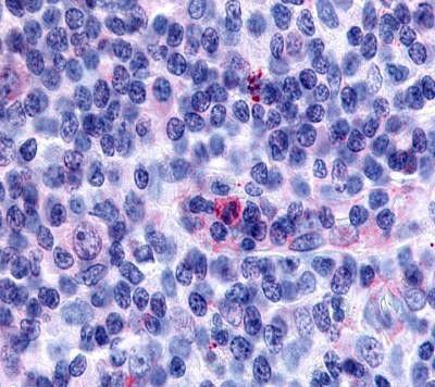 GPR65 Antibody (PA5-33754)