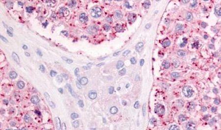GPR68 Antibody (PA5-32836)