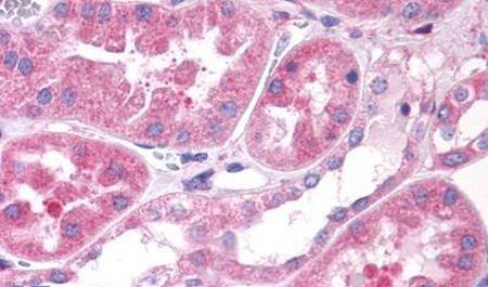 OXGR1 Antibody (PA5-34064)