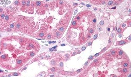 OXGR1 Antibody (PA5-34064) in Immunohistochemistry (Paraffin)