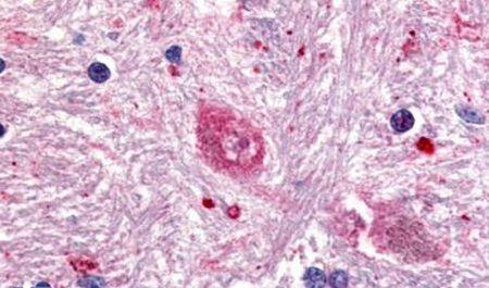 GPR88 Antibody (PA5-32845) in Immunohistochemistry (Paraffin)