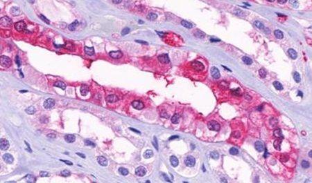 GPR91 Antibody (PA5-33789) in Immunohistochemistry (Paraffin)