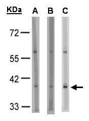 GPR91 Antibody (PA5-34629) in Western Blot