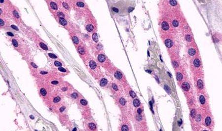 GPR98 Antibody (PA5-33794)
