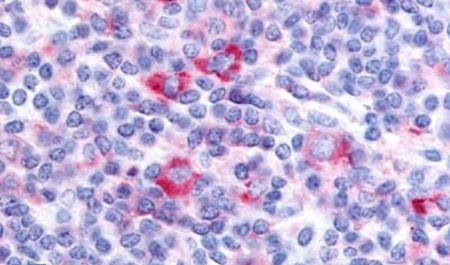 GPRC5D Antibody (PA5-33805) in Immunohistochemistry (Paraffin)
