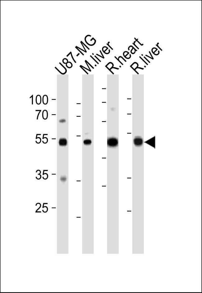 GPT Antibody (PA5-14377)