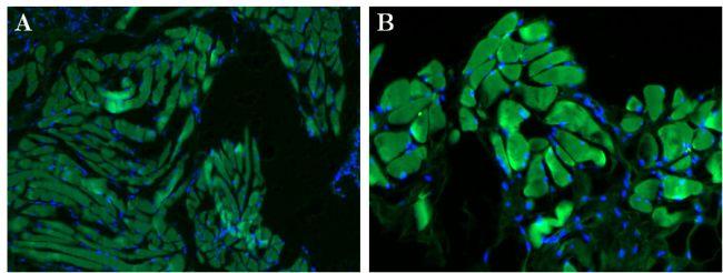 GSR Antibody (MA1-70099) in Immunofluorescence