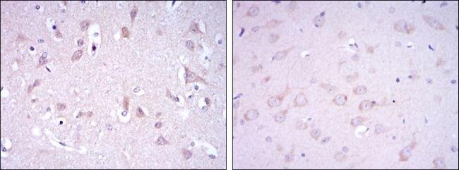 GluR3 Antibody (MA5-15869) in Immunohistochemistry
