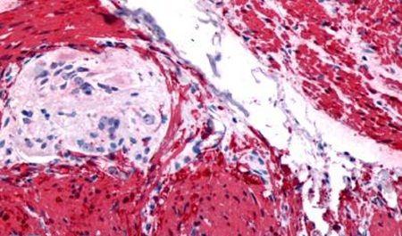 GRPR Antibody (PA5-33834)