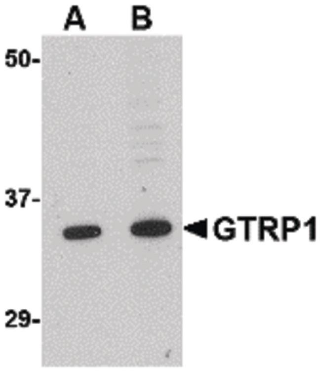 GRTP1 Antibody (PA5-20547) in Western Blot