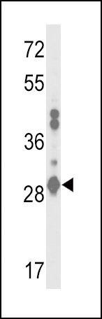 GSTA2 Antibody (PA5-26420) in Western Blot