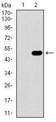 GUCY1A3 Antibody (MA5-17086) in Western Blot