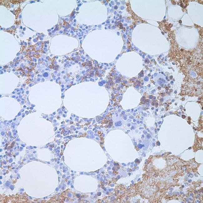 CD235a Antibody (MA1-35460) in Immunohistochemistry