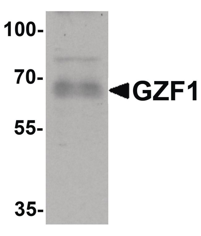 GZF1 Antibody (PA5-34375) in Western Blot