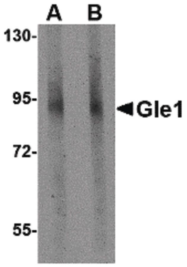 GLE1 Antibody (PA5-20660) in Western Blot