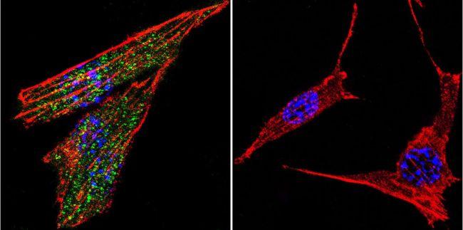 Glucocorticoid Receptor Antibody (PA1-511A) in Immunofluorescence