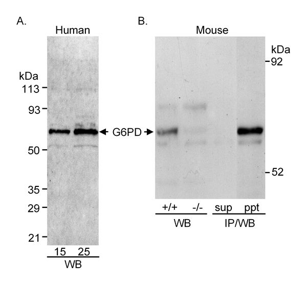 Glucose-6-Phosphate Dehydrogenase Antibody (PA1-84814)