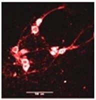 NMDAR2B Antibody (PA3-104) in Immunofluorescence