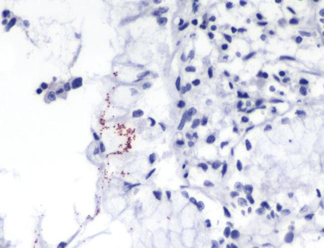 Helicobacter pylori Antibody (MA5-16369)