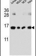 H2AFJ Antibody (PA5-25484)
