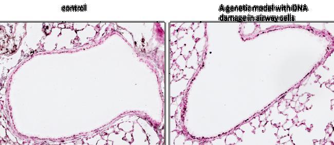 Phospho-Histone H2A.X (Ser140) Antibody (MA1-2022) in Immunohistochemistry