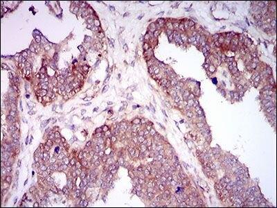 HAS2 Antibody (MA5-17087) in Immunohistochemistry