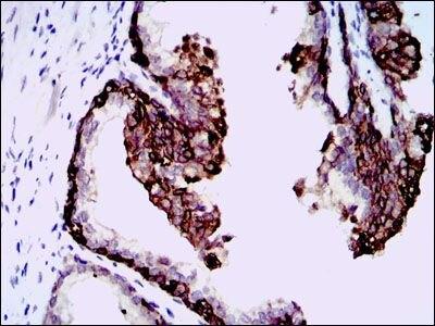 HAS3 Antibody (MA5-17088) in Immunohistochemistry