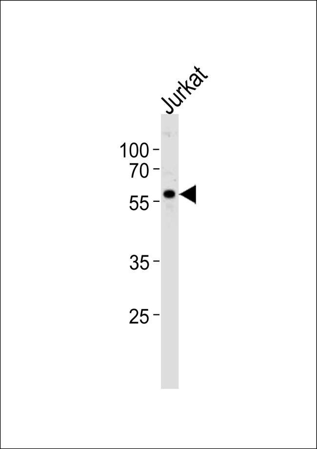 MYST2 Antibody (PA5-11255) in Western Blot