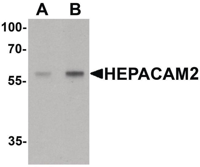 HEPACAM2 Antibody (PA5-34480)