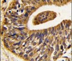 ErbB2 Antibody (PA5-14634)