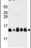 HIST1H2AG Antibody (PA5-24822) in Western Blot
