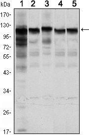 HK1 Antibody (MA5-15675) in Western Blot