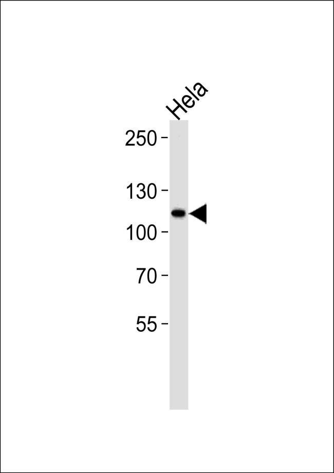 HK2 Antibody (PA5-15443) in Western Blot