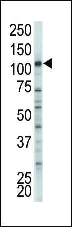 HK2 Antibody (PA5-15444) in Western Blot