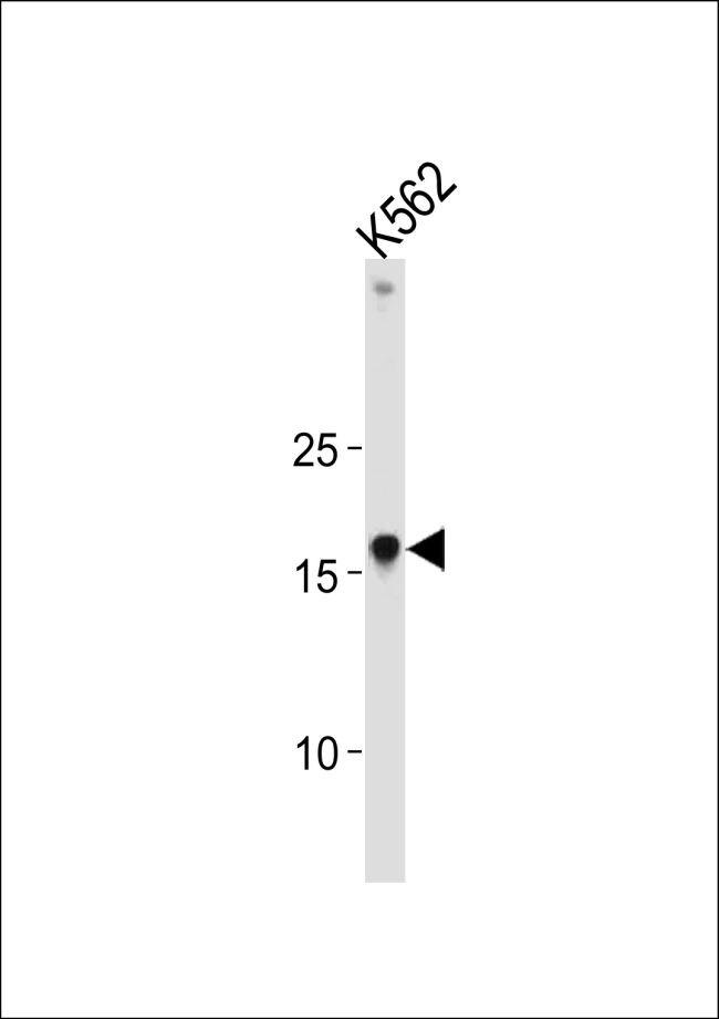 HMGA1 Antibody (PA5-26115) in Western Blot