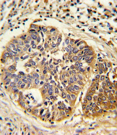 HMGCS1 Antibody (PA5-13604) in Immunohistochemistry