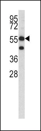 HMGCS1 Antibody (PA5-13604) in Western Blot