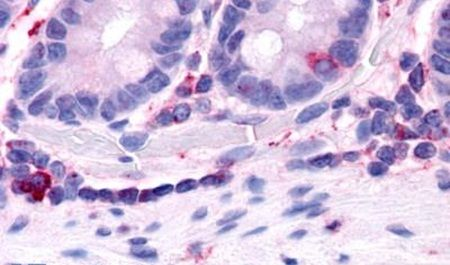 HNF4G Antibody (PA5-33840)