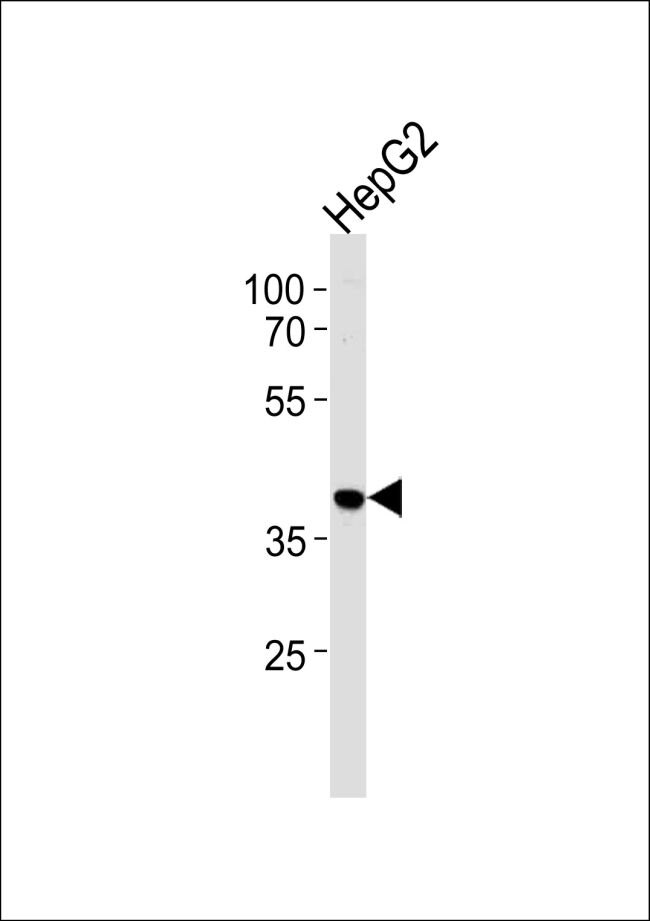 hnRNP AB Antibody (PA5-25436) in Western Blot